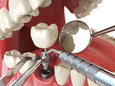 dental implant west hollywood, CA