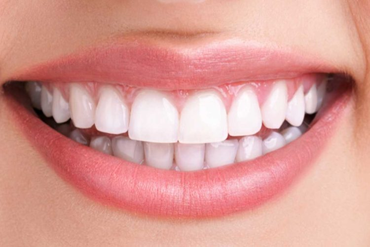 Zoom Teeth Whitening Los Angeles