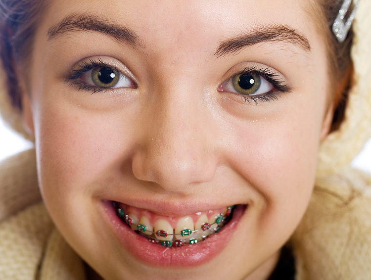 West Hollywood Orthodontics