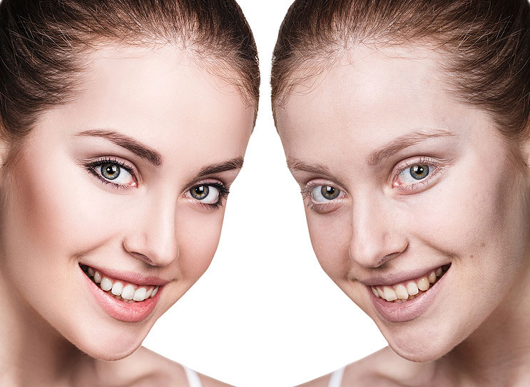 Anti Aging Dentistry Los Angeles