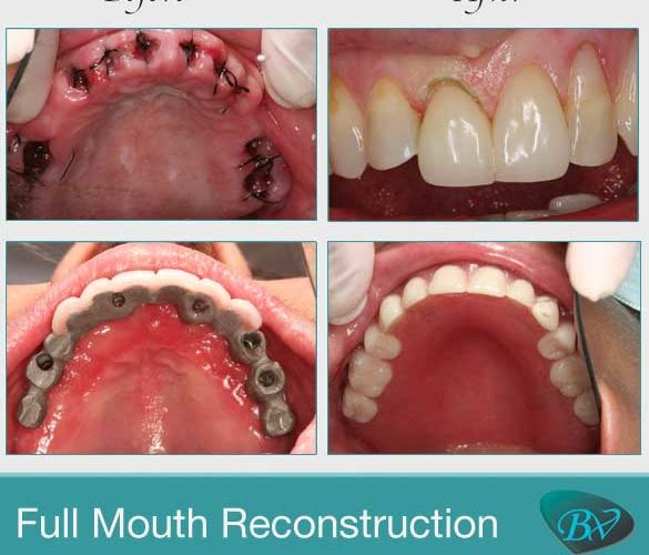 West Hollywood Full Mouth Reconstruction