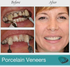 Step-by-Step Guide to Porcelain Veneer Procedure - West