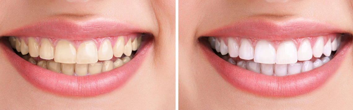 teeth whitening west hollywood ca