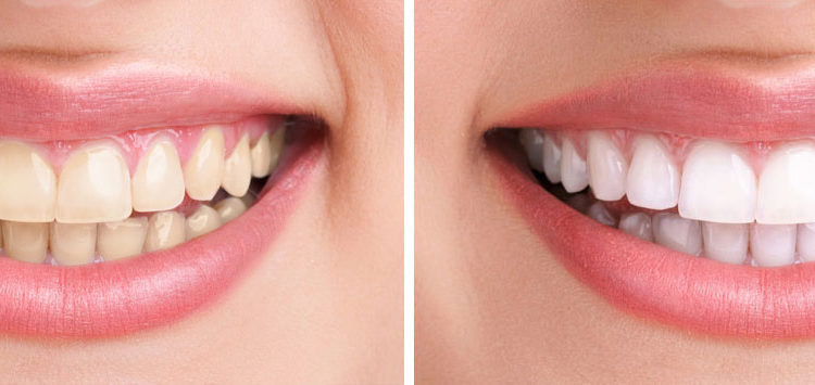 teeth whitening west hollywood ca