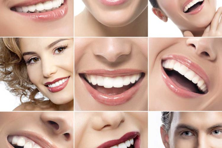 Veneers West Hollywood