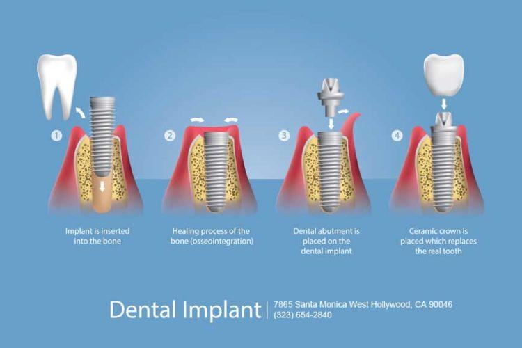 West Hollywood Dental Implants