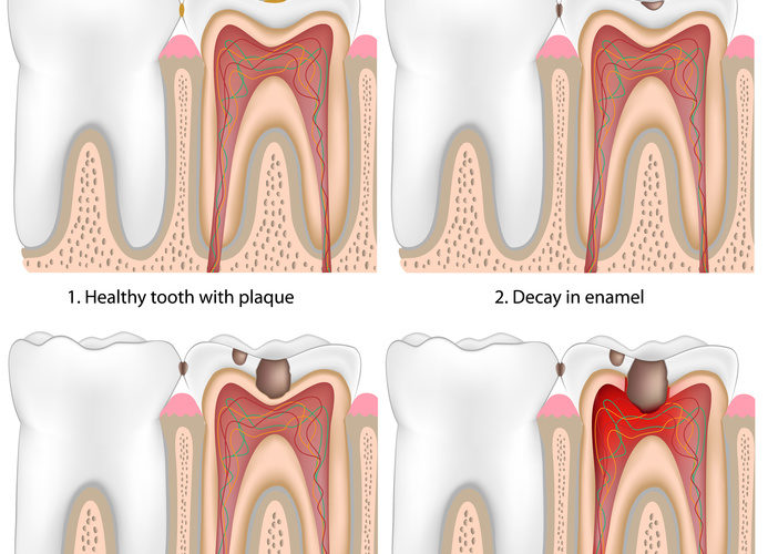 west hollywood root canal