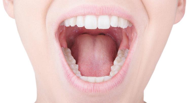 Cavity Free Mouth