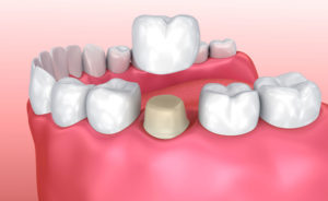 dental crown Replacement cost Los Angeles