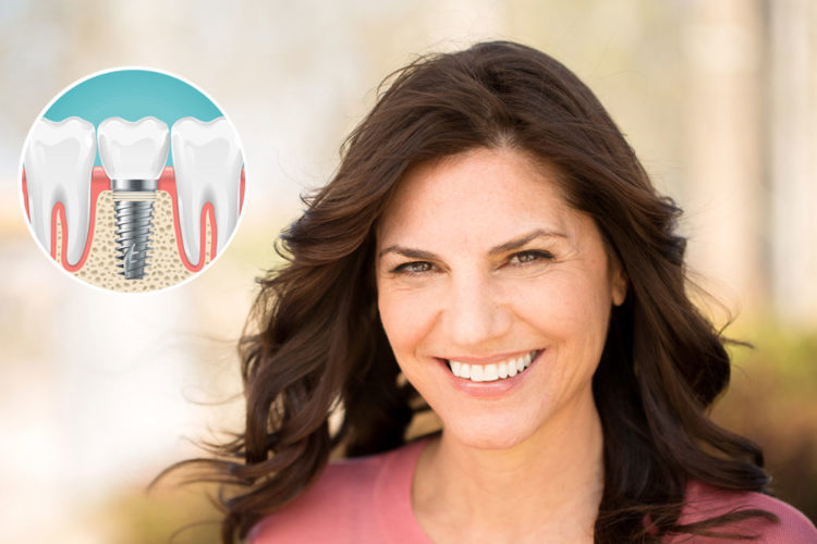 dental implants options West Hollywood