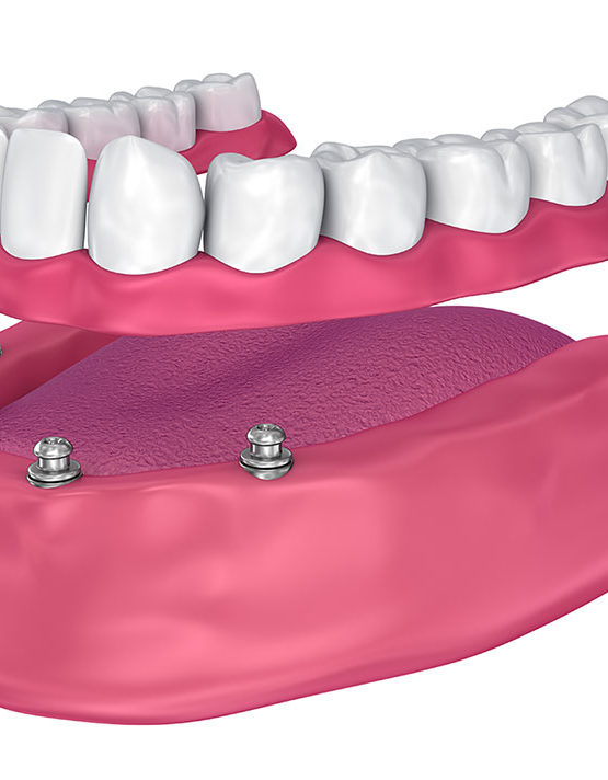 permanent dentures using all on 4 dental implants