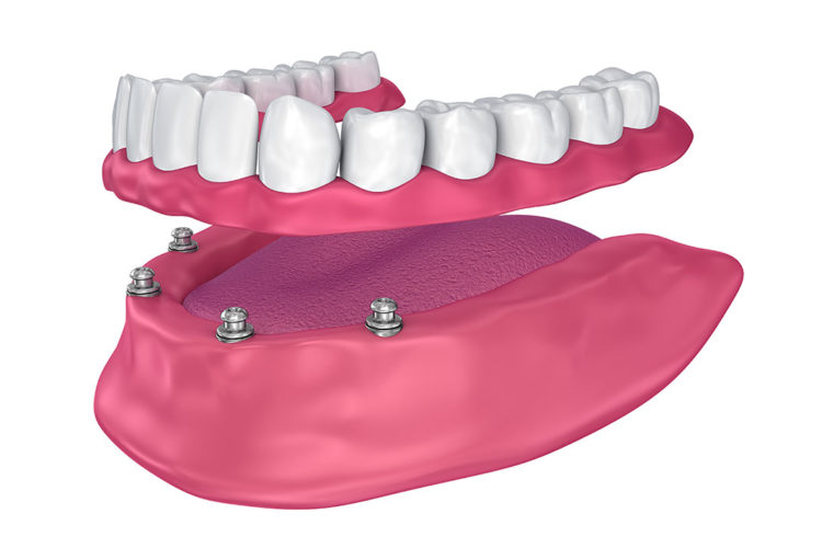 all on 4 dental implants West Hollywood