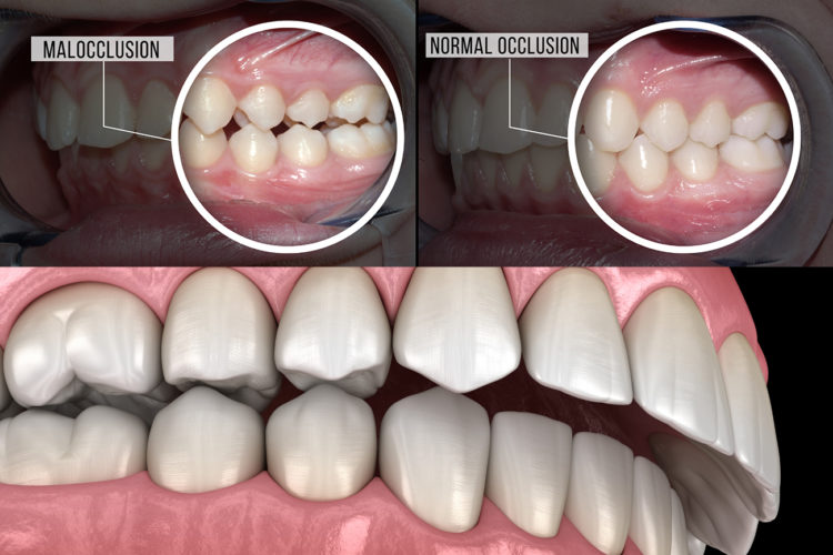 overbite and underbite treatment