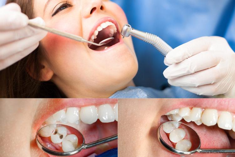 Dental Fillings Cost Los Angeles
