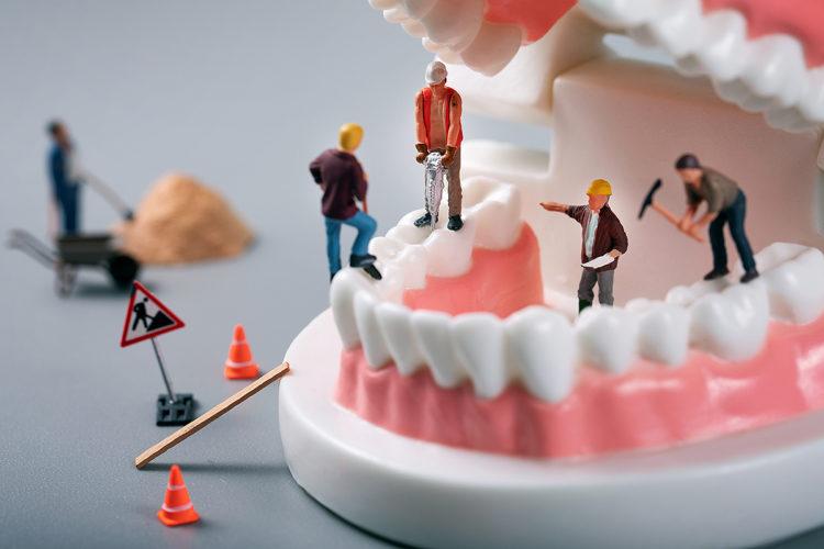 Fix All teeth