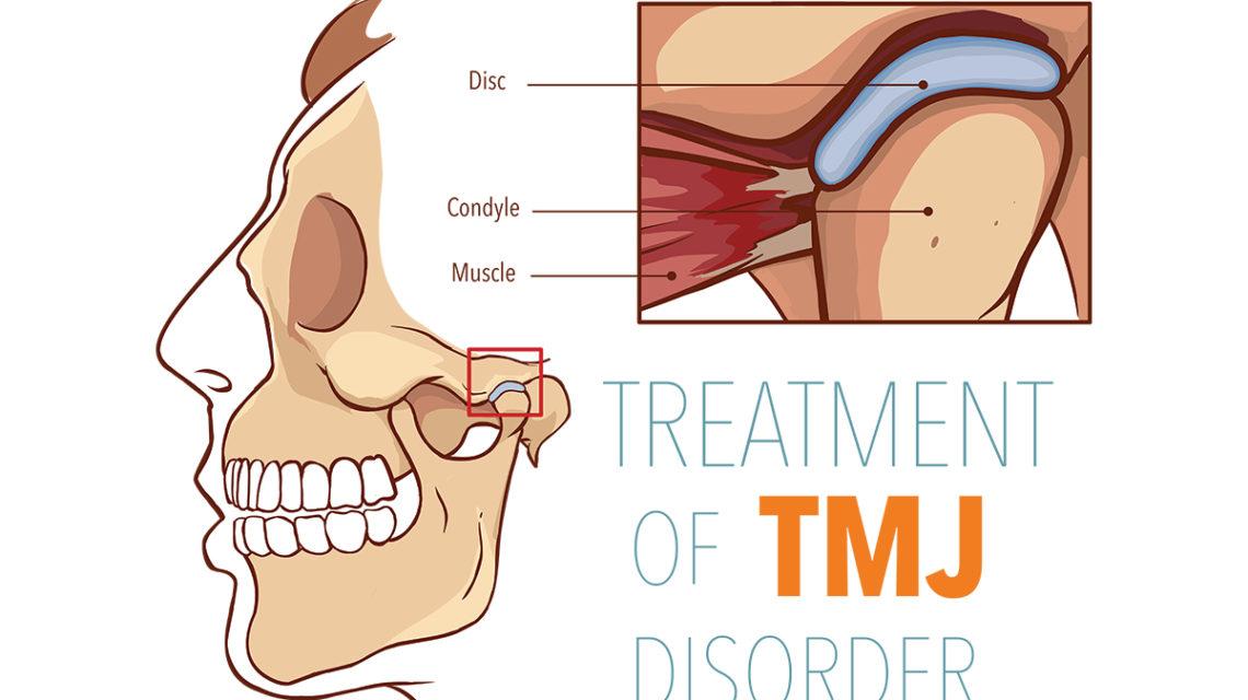 TMJ treatment Los Angeles