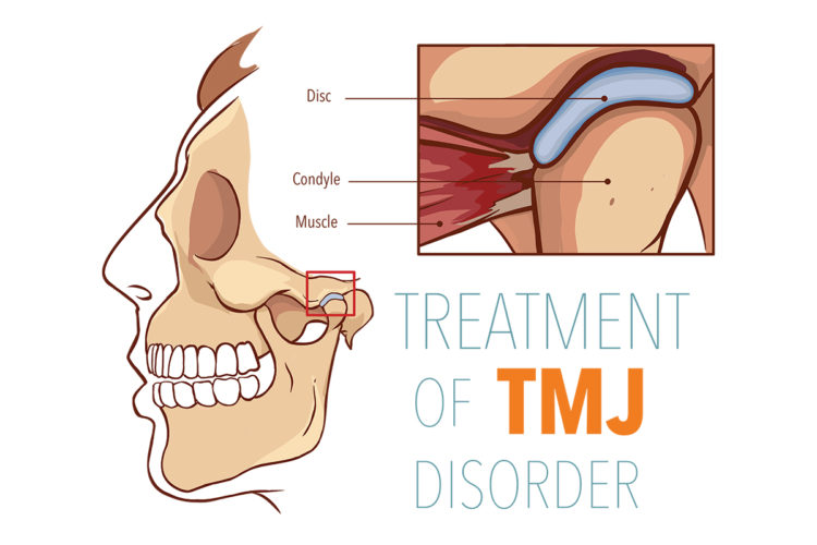 TMJ treatment Los Angeles