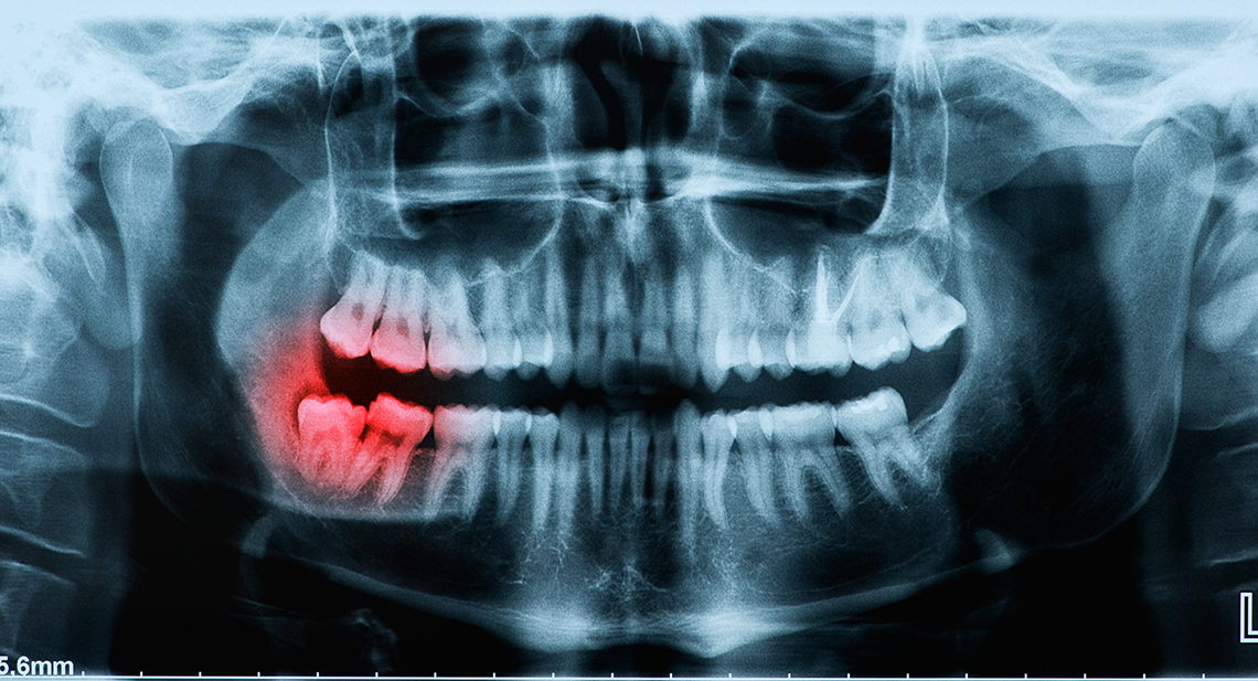 Broken Wisdom Tooth - How much does it cost to remove?