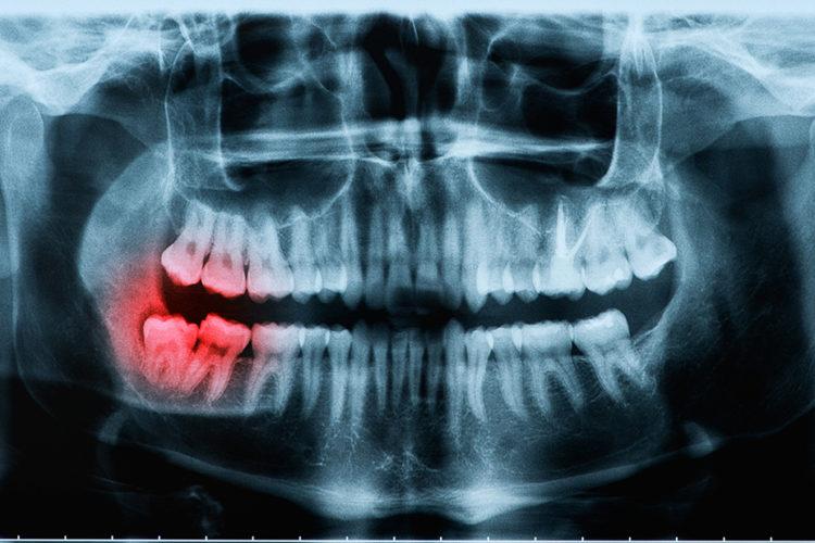 Broken Wisdom teeth