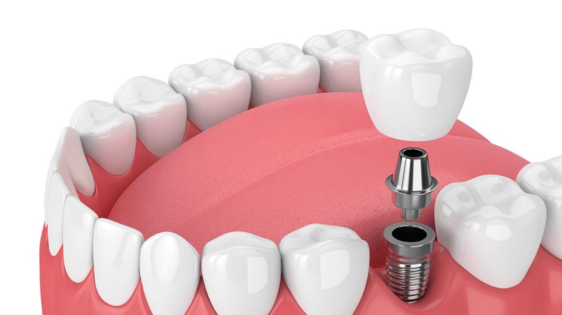 dental implants life span