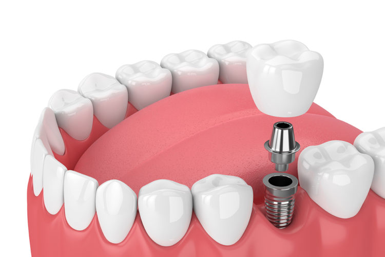 dental implants life span