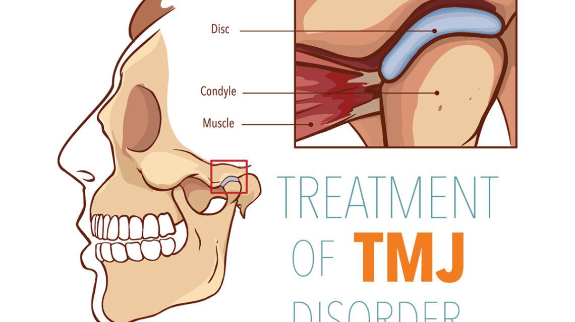 TMJ treatment options