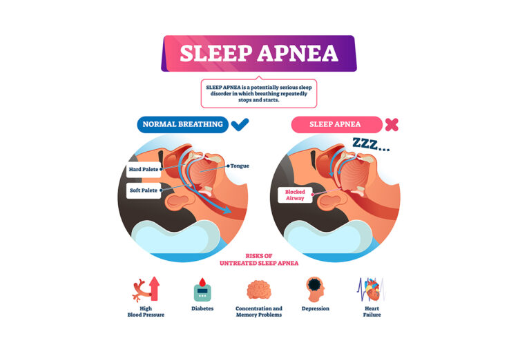 importance of sleep apnea treatment