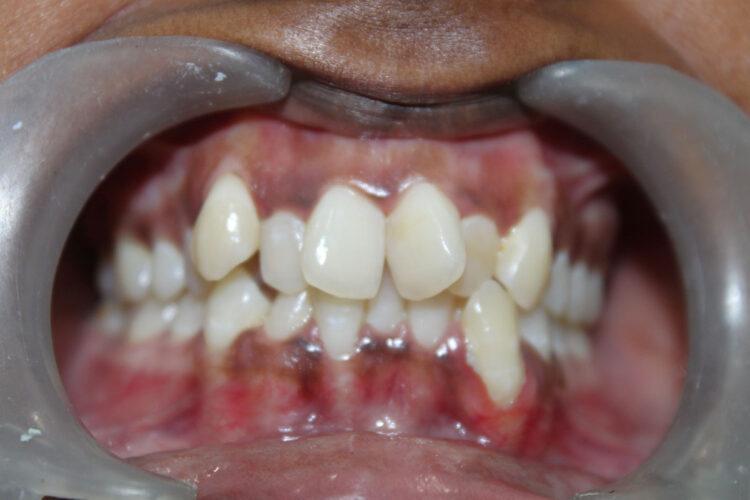 crowded teeth treatment