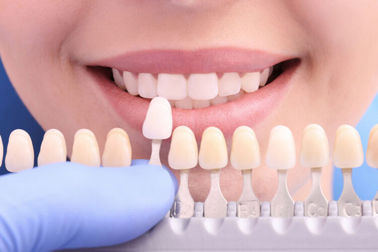 who is a candidate for veneers